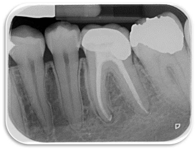 Root canal almost fully healed