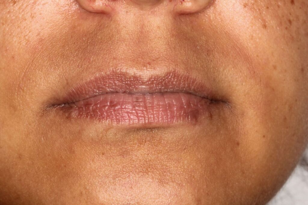 Lip filler example before
