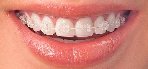 Ceramic clear braces