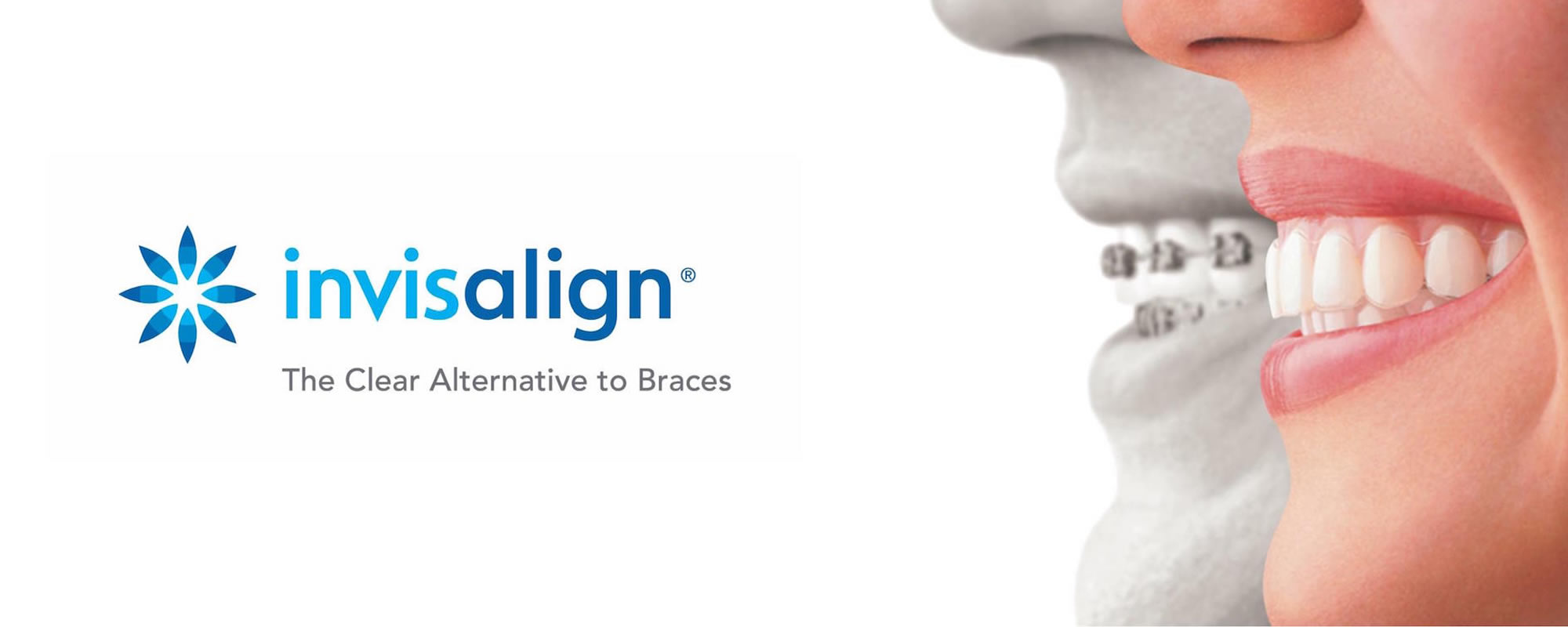 Invisalign Orthodontics Bexleyheath
