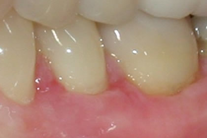 Gingival Grafting Example After